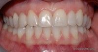 After: Anterior teeth reshaped to be symmetrical