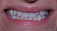 Before: Retained irregular shaped anterior teeth