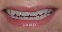 Picture32 p8 Direct Bonding Closed Mouth Smile After-1