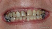 Before: Old dental work, space between two front teeth