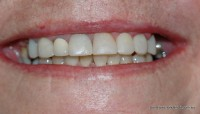 After: Minimal dentistry, Whitening, composite veneers amd midline space closed