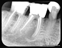 Darkish area under front root of middle tooth is a healing infection in bone