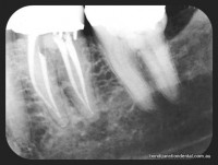 Molar with two roots and four canals