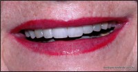 After: Tooth whitening and  four anterior veneers