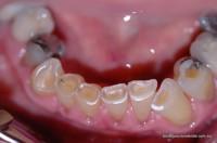 Worn lower front teeth