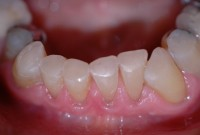 Bonding on edges of worn teeth