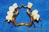Part metal upper denture with thinner skeleton metal framework