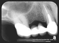 X-ray of bridge: Two abuttment teeth supporting two missing teeth. One abuttment tooth has nerve treatment, post and core