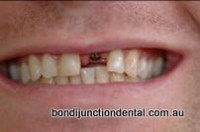 Mid treatment: Implant placed