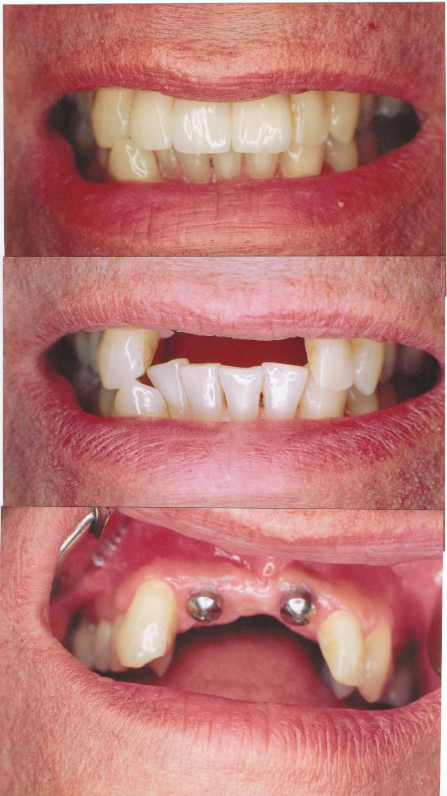 Multiple Anterior Teeth
