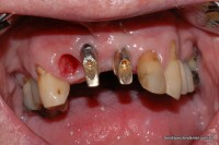During: Extraction socket moulded to accept new crown supported by two implants
