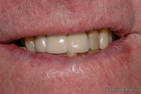 After: 3 crowns supported by two implants