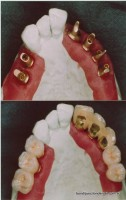 Laboratory photo: Upper arch restored using six implants supporting eight crowns