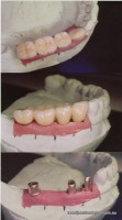 Laboratory photo: Three implants supporting four crowns