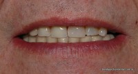 Patient wearing a lower denture with marked increase in retention
