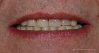 Patient is wearing a part upper denture to the midline and overlay implant press stud retained full lower denture retained