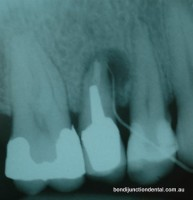Tooth has an existing post crown and an infection associated with a split root. The tooth was not treatable and was removed.