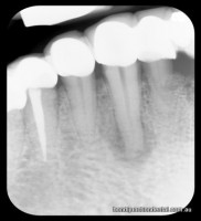Dark area under centre canine shows infection. Bone returns to norma under root filled tooth at the left of the X-ray