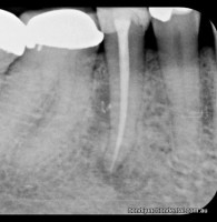Premolar with one root and one canal