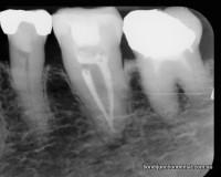 Molar with one root and two canals fused near root end