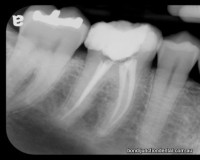 Molar with two roots and three canals