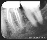 Two rooted tooth with four canals