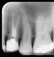 Premolar with two roots and two seperate canals