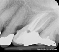 Molar with three roots and three canals