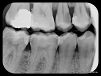 Bite Wing X-rays: shows decay as dark areas between teeth