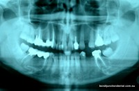 OPG X-ray provides an overview of teeth and jaws