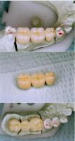 Actual dental work (three unit bridge) patients can touch and feel