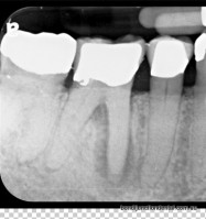 Peri-apical X-ray shows the roots of the teeth, dark area in bone is an infection